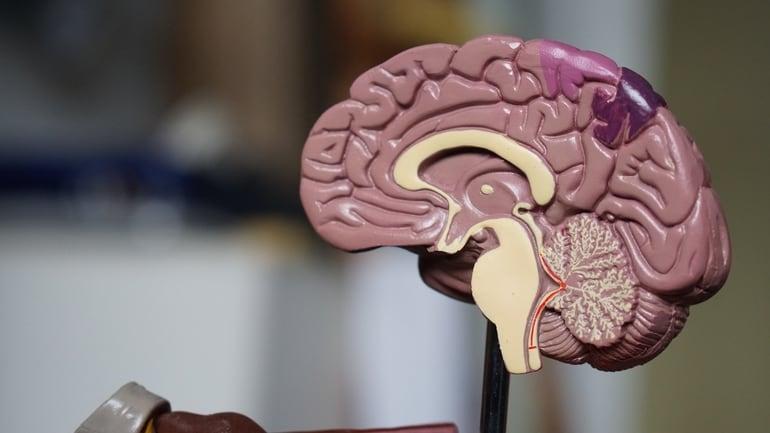 Demenz beginnt im Gehirn